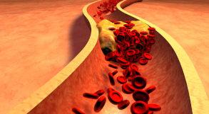 Alimentos que elevam o colesterol no organismo
